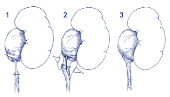 Laproscopic Pyeloplasty Our Services Urology Bay Of Plenty